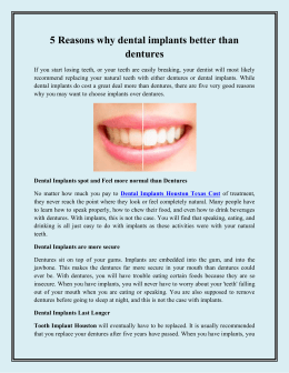 5 Reasons why dental implants better than dentures