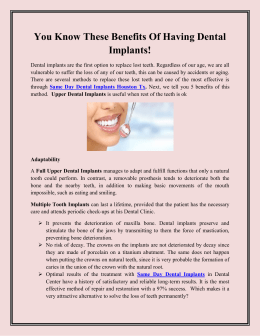 You Know These Benefits Of Having Dental Implants!