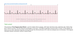 EKG Strip English