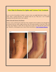Vein Clinic In Houston For Spider and Varicose Vein Treatment