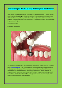 Dental Bridges What Are They And Why You Need Them
