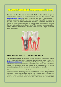 A Complete Overview On Dental Veneers And Its Usage