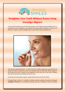 Straighten Your Teeth Without Braces Using Invisalign Aligners
