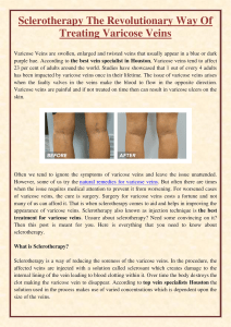 Sclerotherapy The Revolutionary Way Of Treating Varicose Veins