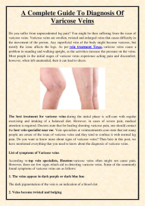 A Complete Guide To Diagnosis Of Varicose Veins